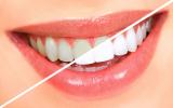 Atidi burnos higiena bei dantų valymas – svarbiausias sveikos burnos ertmės ženklas