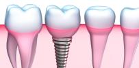 Dantų implantacija – patvirtintas būdas susigražinti prarastą šypseną