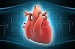 Užakusias širdies kraujagysles gydys deimantiniu grąžtu