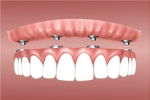 Dantų protezavimo etapai – kaip vyksta procedūra