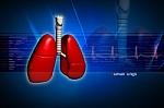 Ar įveiksime tuberkuliozę iki 2050 metų?
