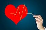 Kardiologė: cholesterolį įmanoma kontroliuoti ir be vaistų