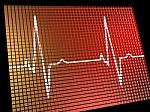Širdies infarktą paankstina pokyčiai, kurie nesukelia skausmo
