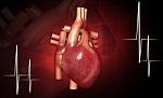 Vainikinės arterijos stentuotos COVID-19 sergančiam pacientui